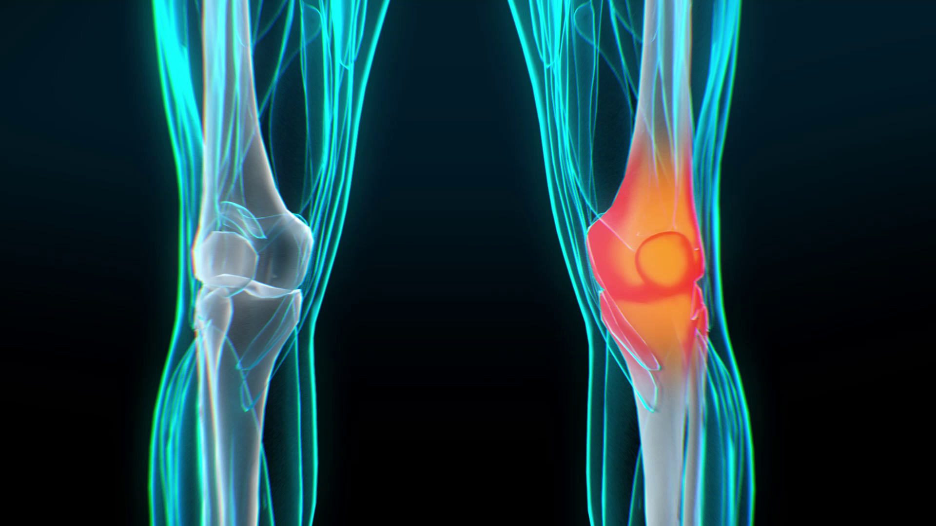 Inflammation of the knee - Explainer Video by Darvideo